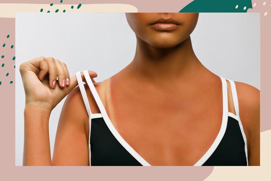 sun damage on every skin tone