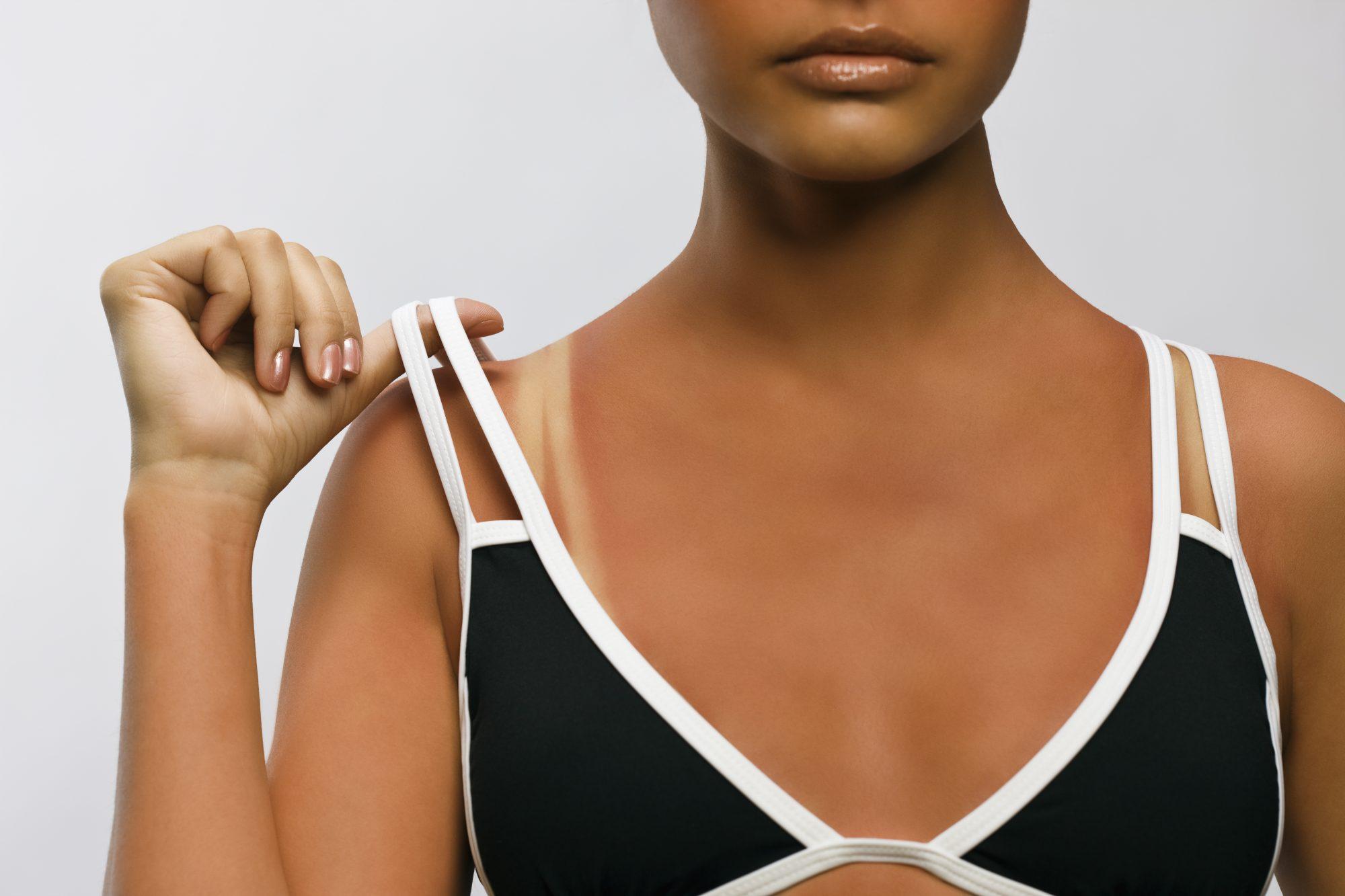 skin health sunburn signs