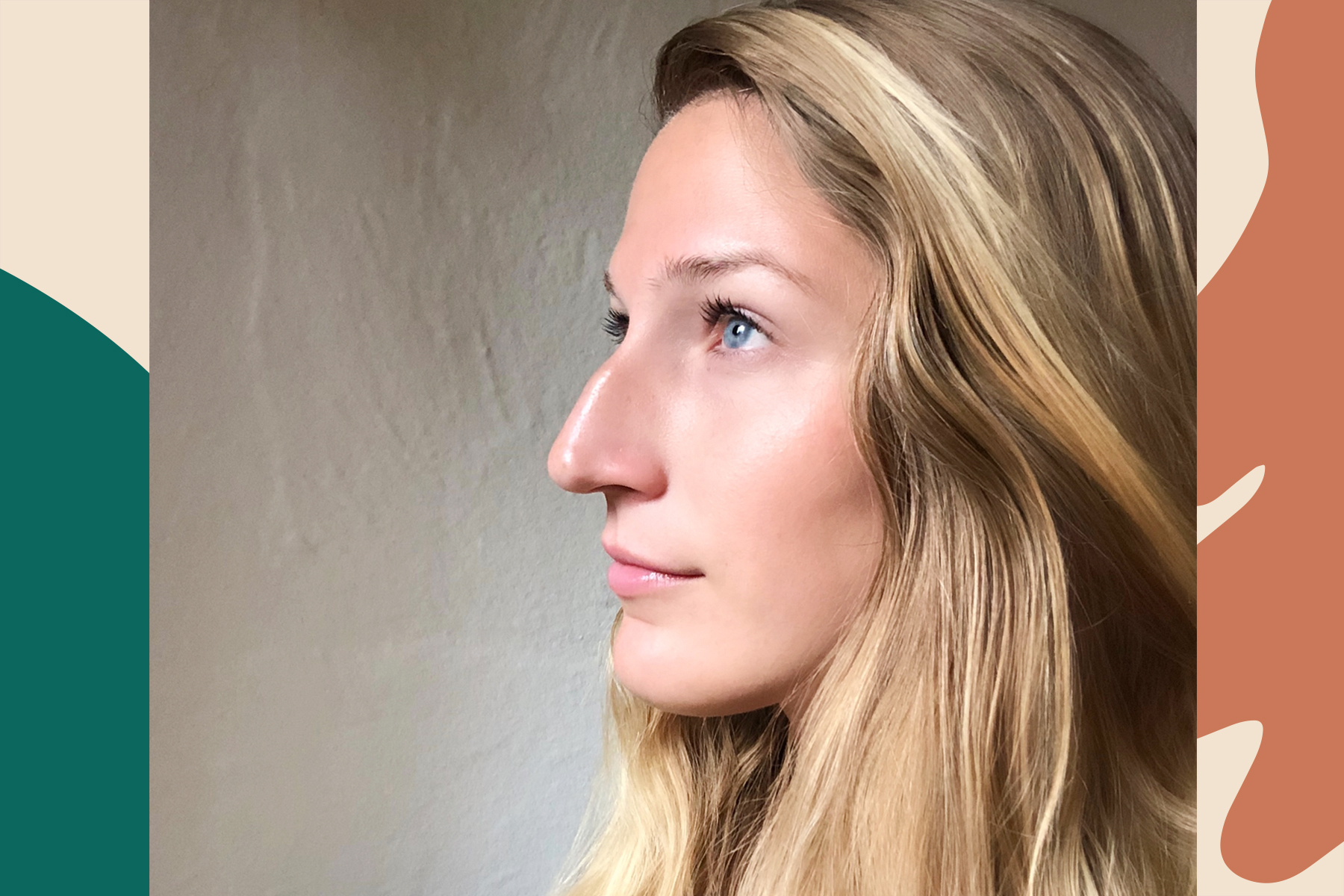 bumpy nose confidence