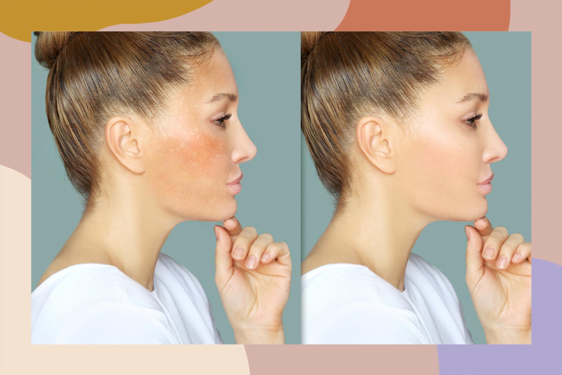 melasma skincare routine