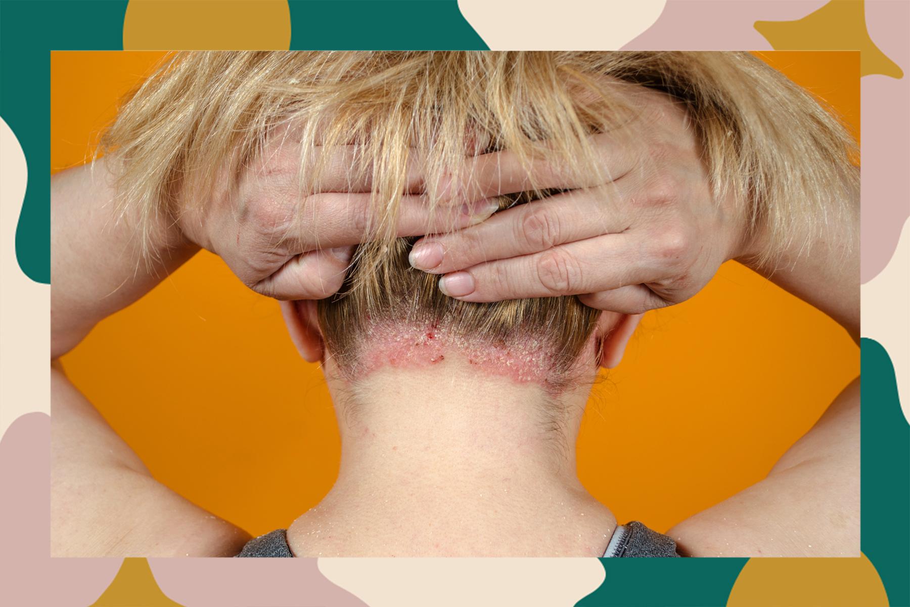 psoriasis skincare routine