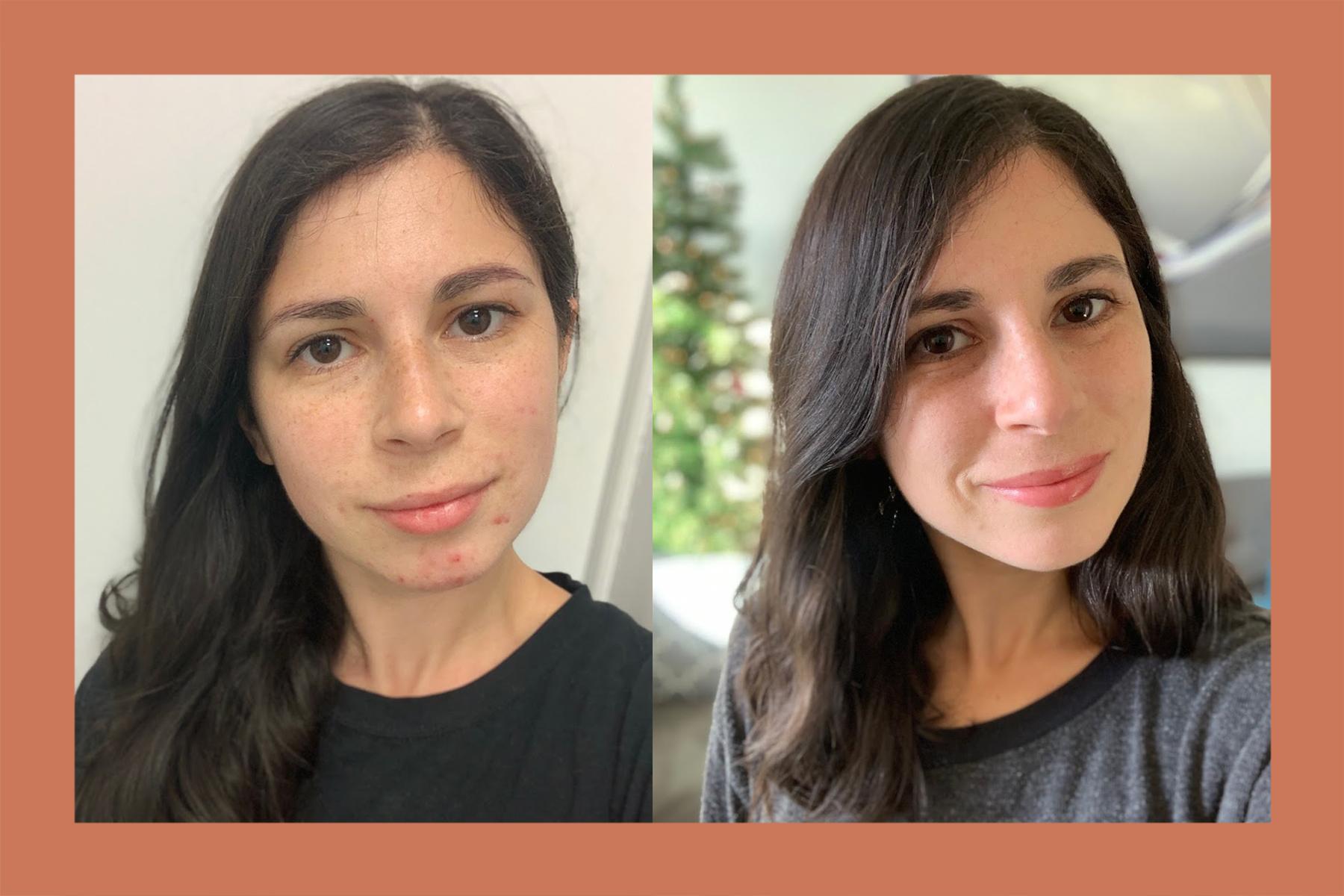Rachel-Before-After