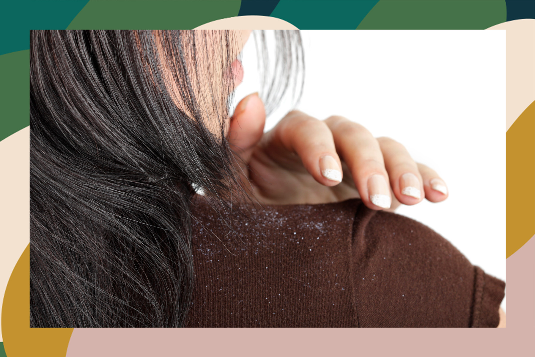 how to treat dandruff tips