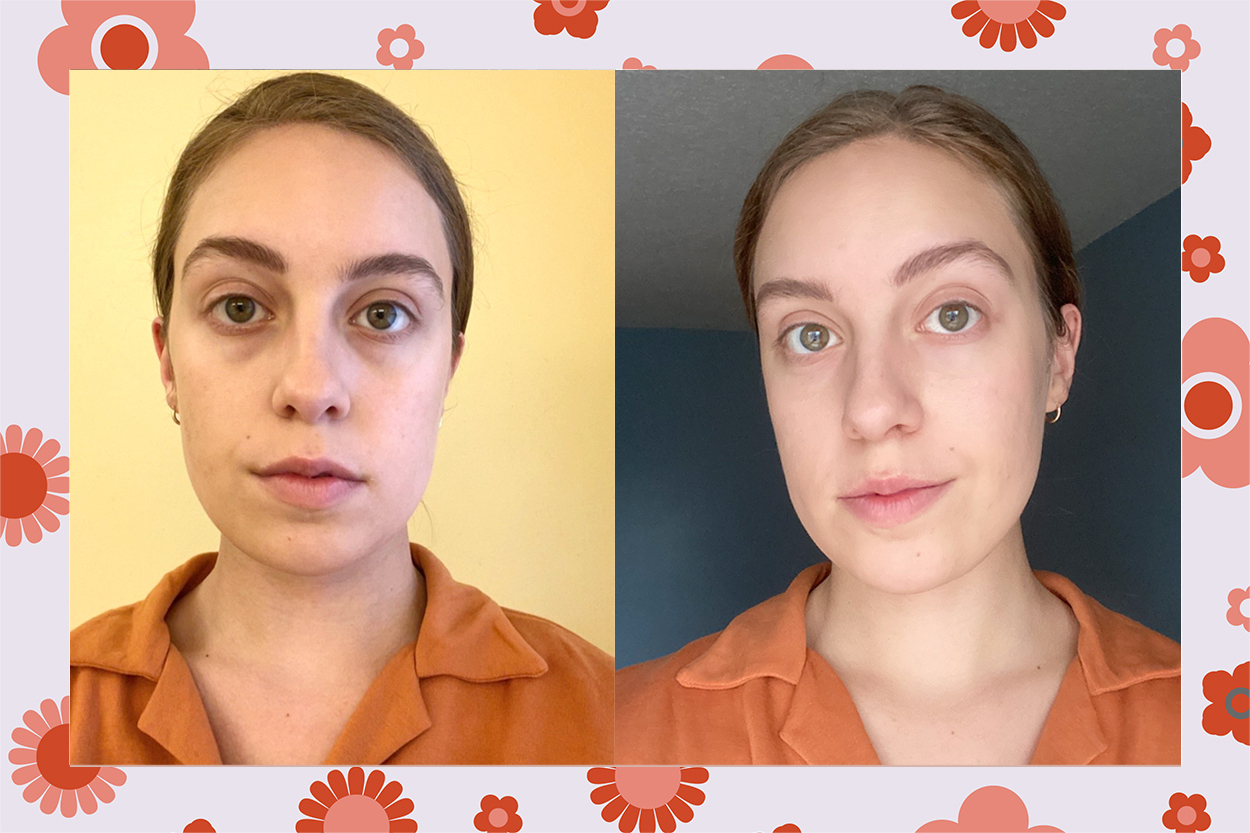 Skyn Iceland Dissolving Microneedle Eye Patches review before/after