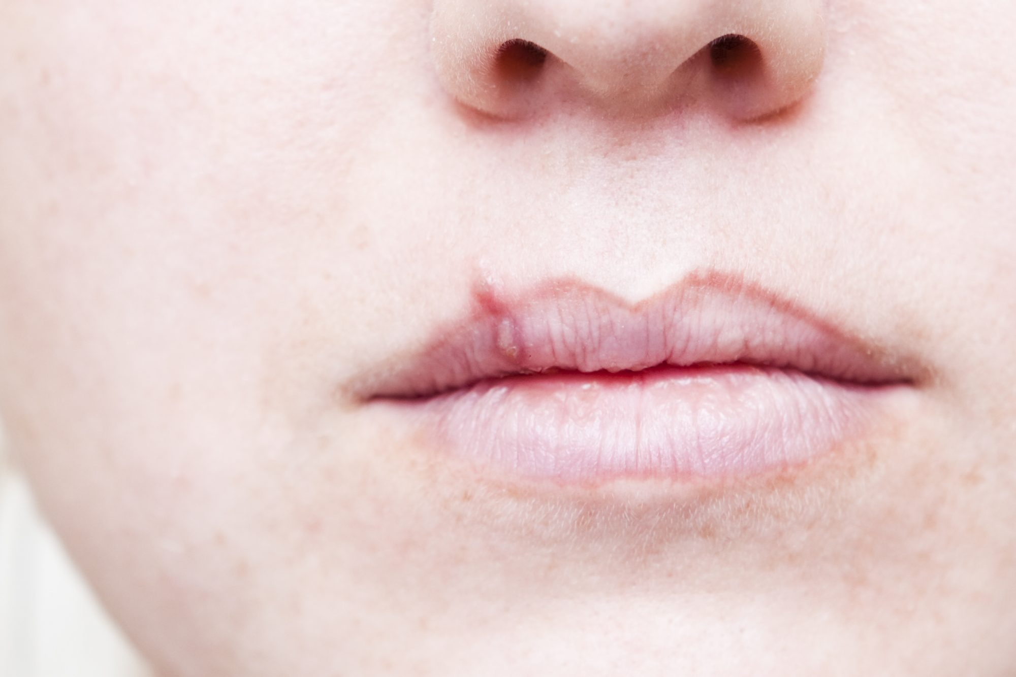 skin emergency cold sore treatment