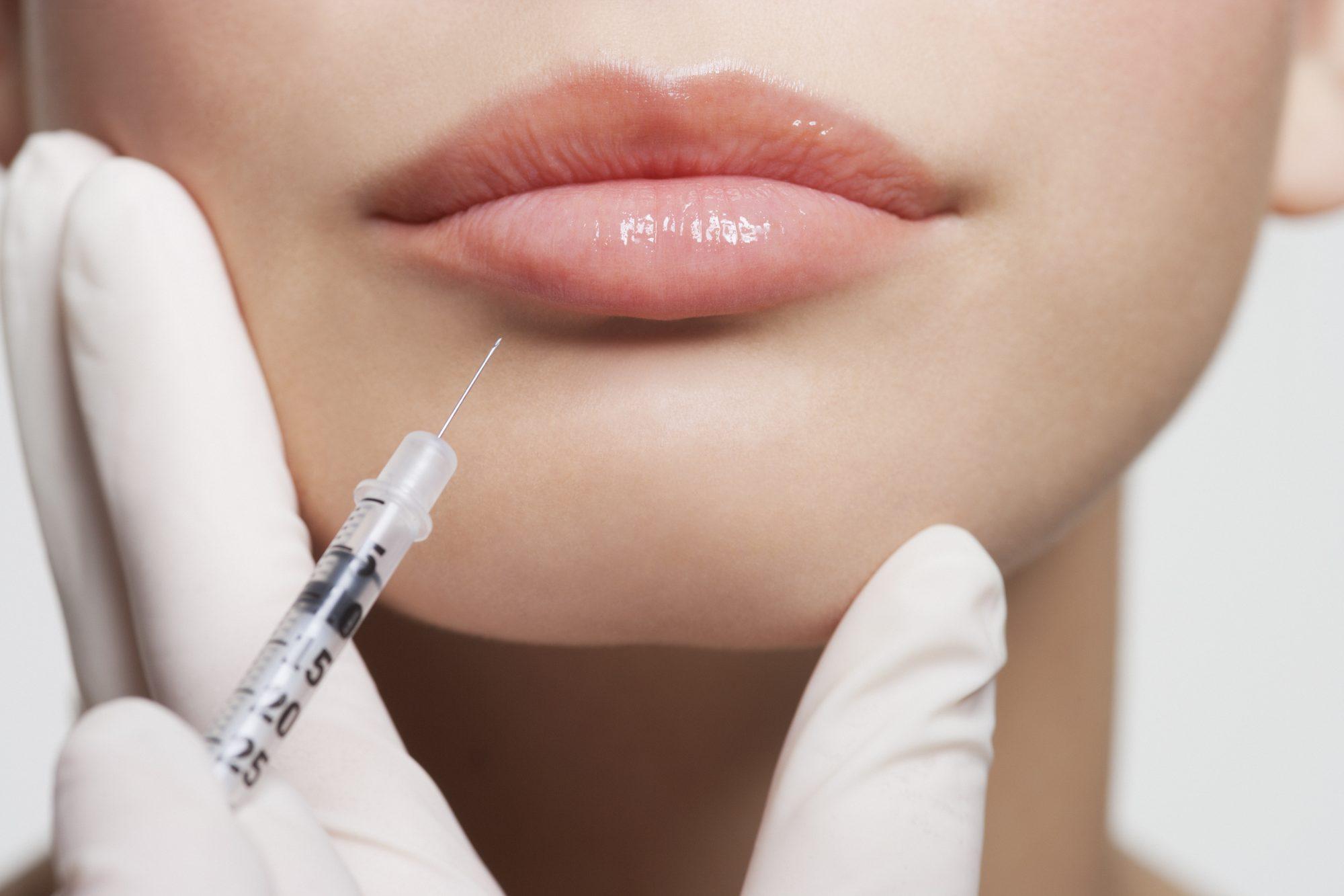 cosmetic infidelity botox fillers