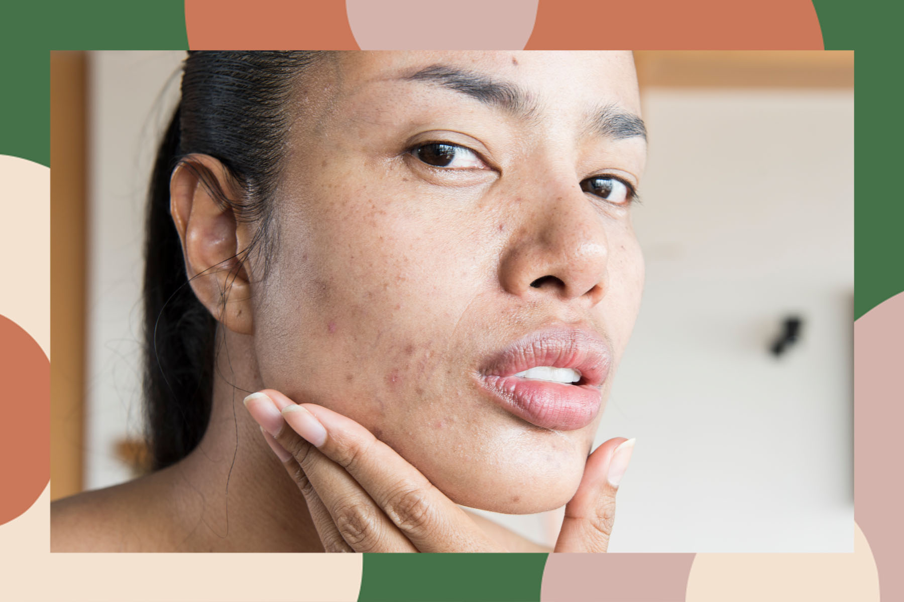 flat acne pimples solutions treatments