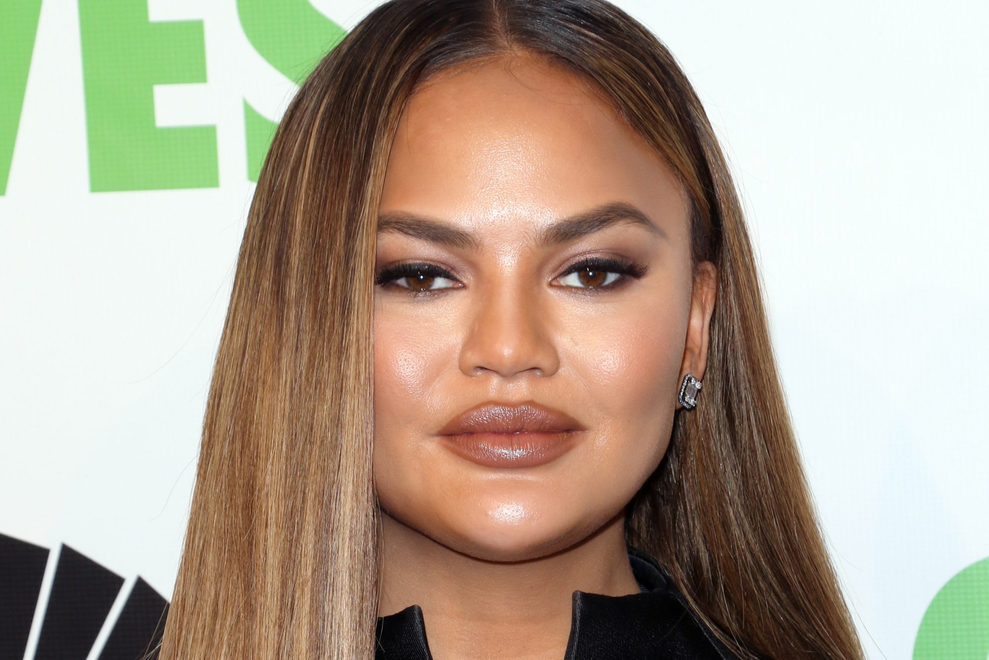 chrissy teigen pregnancy loss
