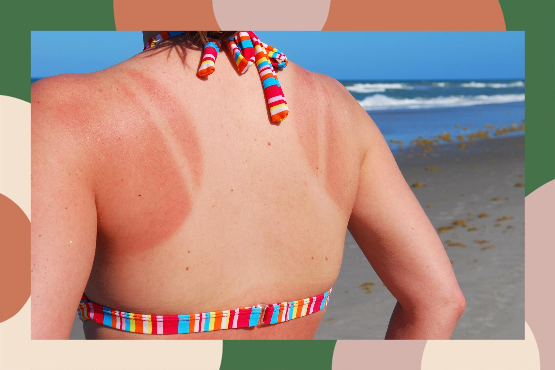 sun allergies allergy sun burn