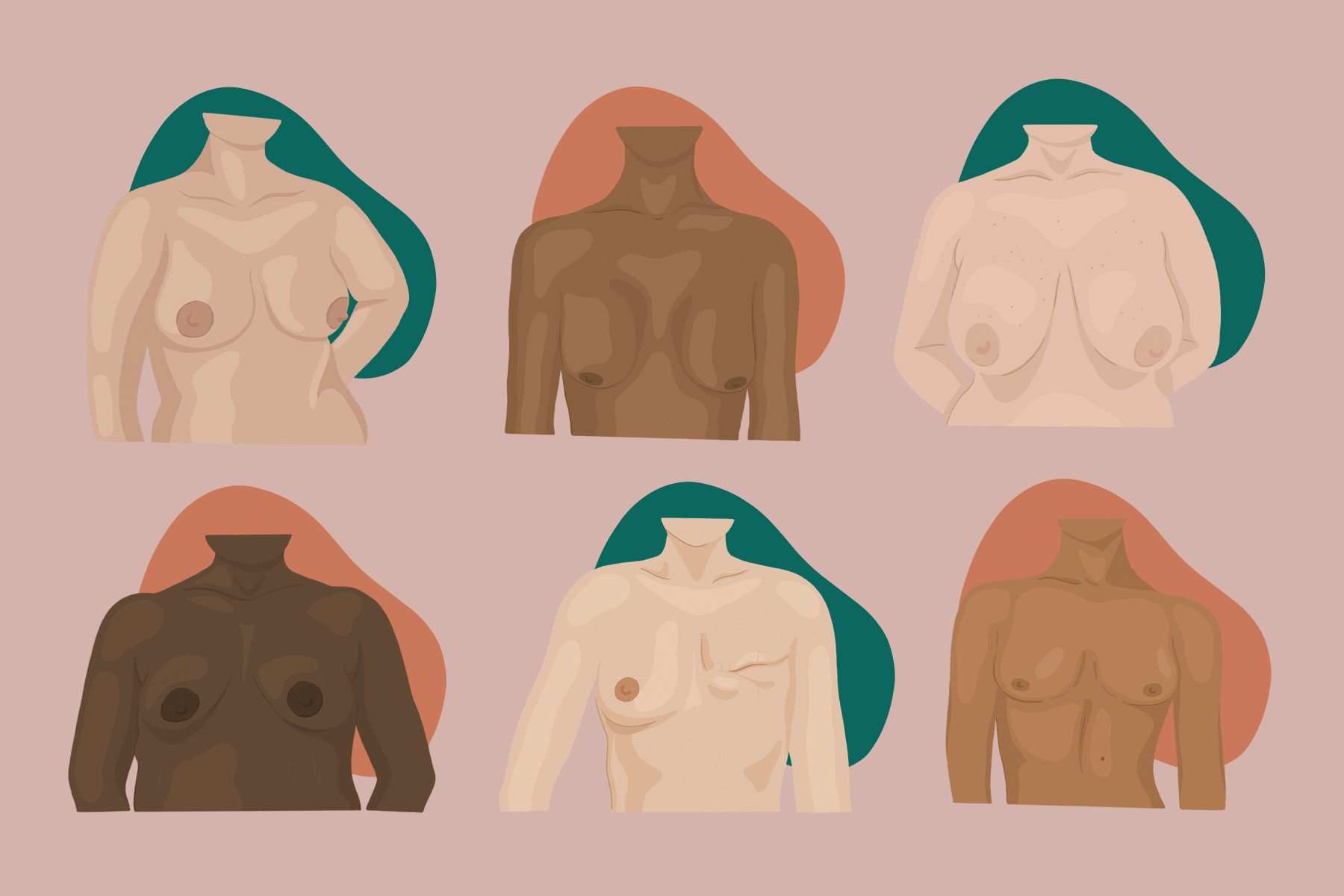 different types of boobs