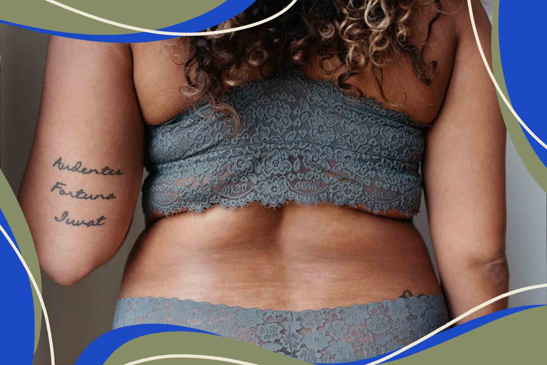 Stretch Marks Happen. Why Do Women Have to Love Them, Too?