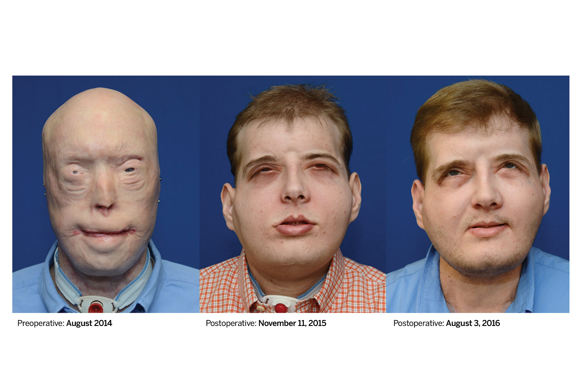 First Extensive Face Transplant Reipient Patrick Hardison Reclaim His Life Just A Normal Guy Year After Surgery People Com