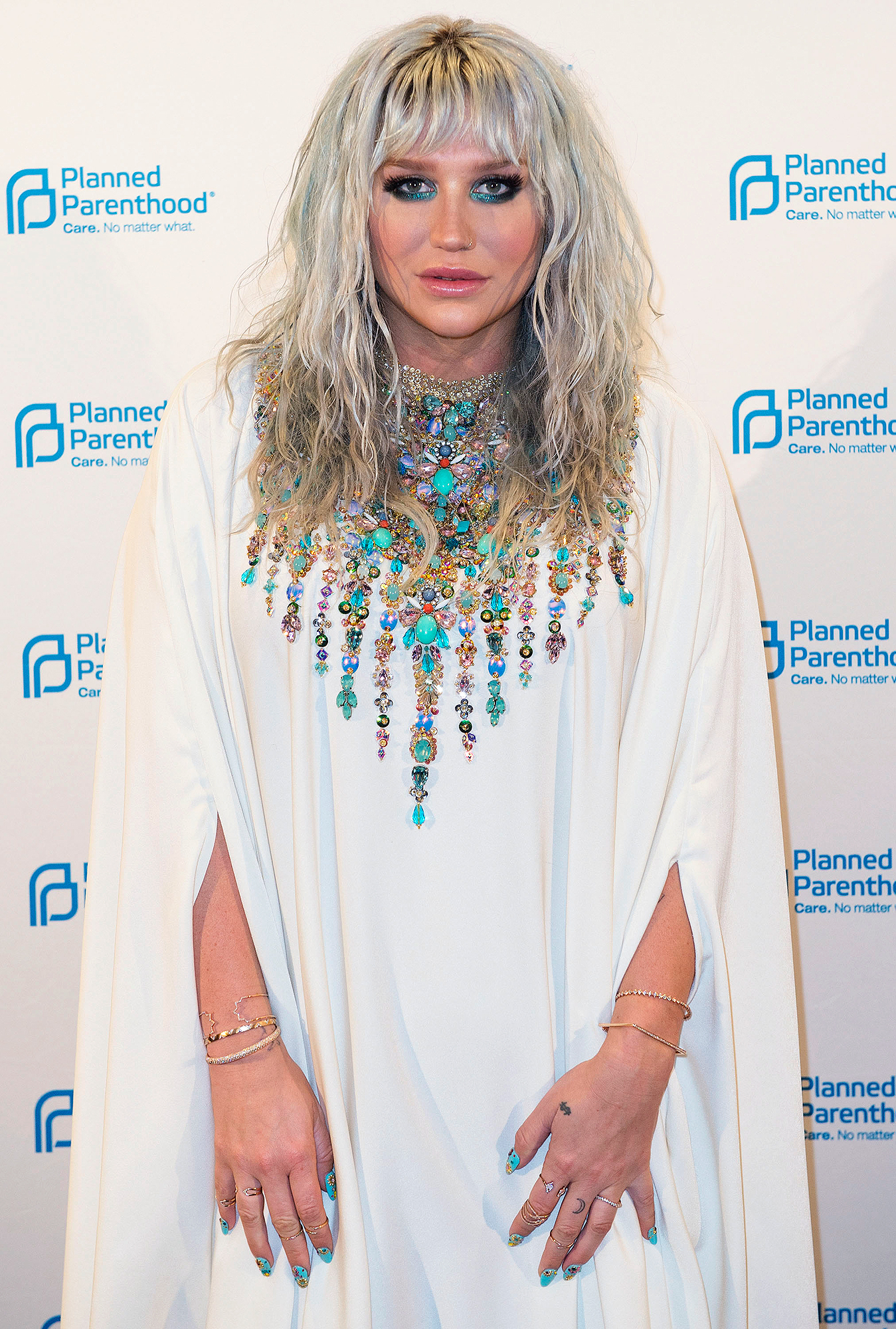 Kesha Displays Her Lack of Thigh Gap