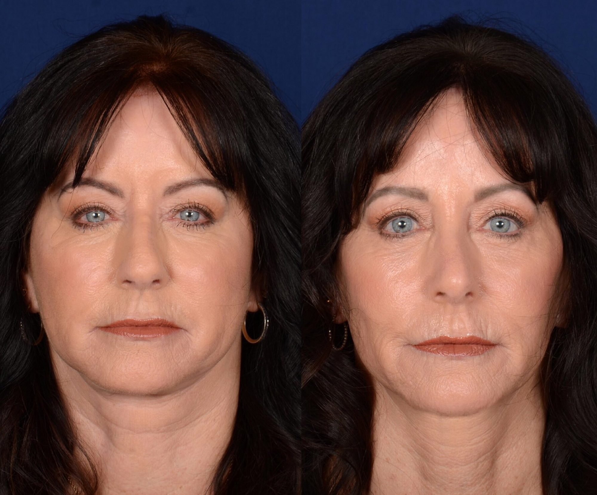 twins-facelifts-2