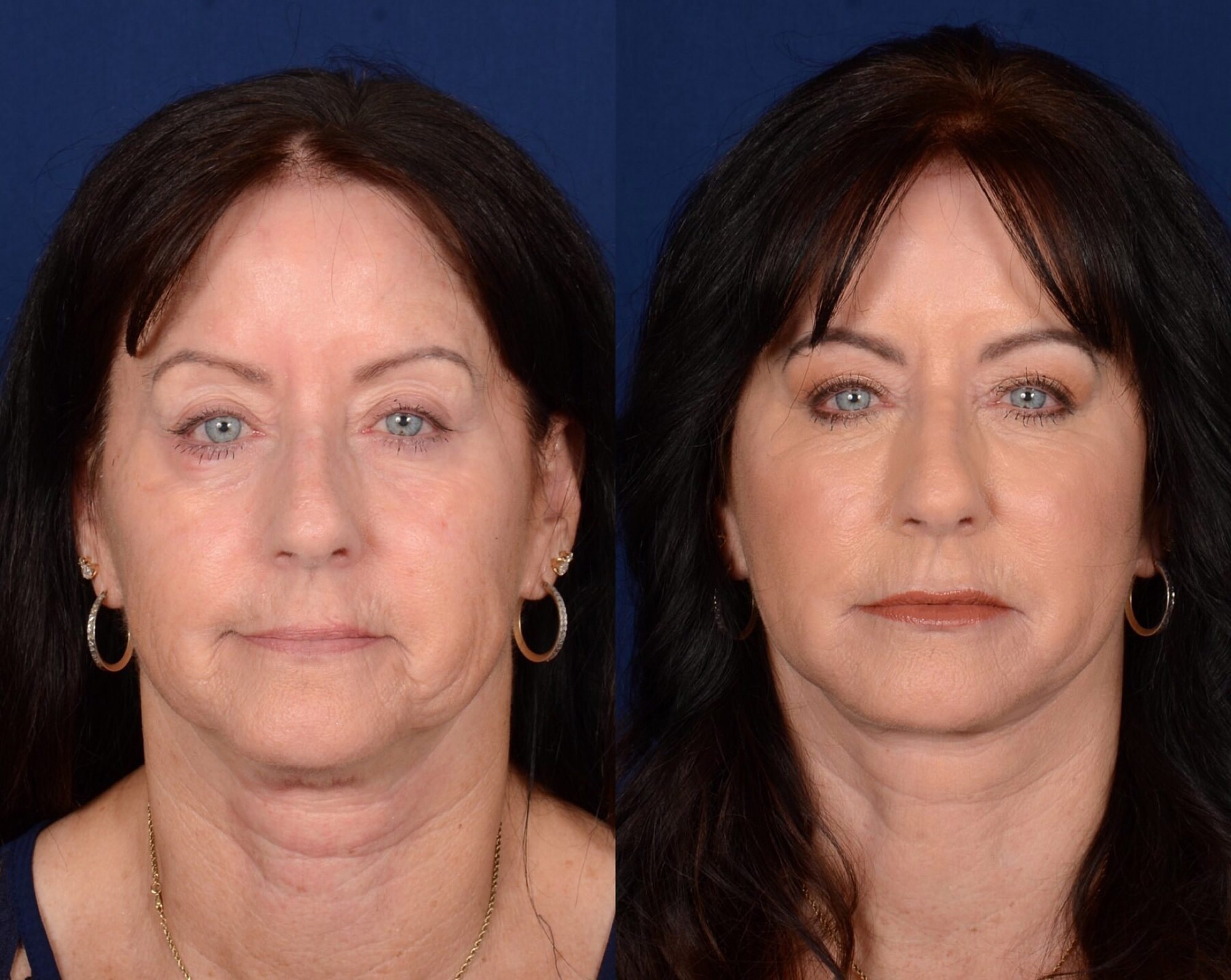 twins-facelifts-3