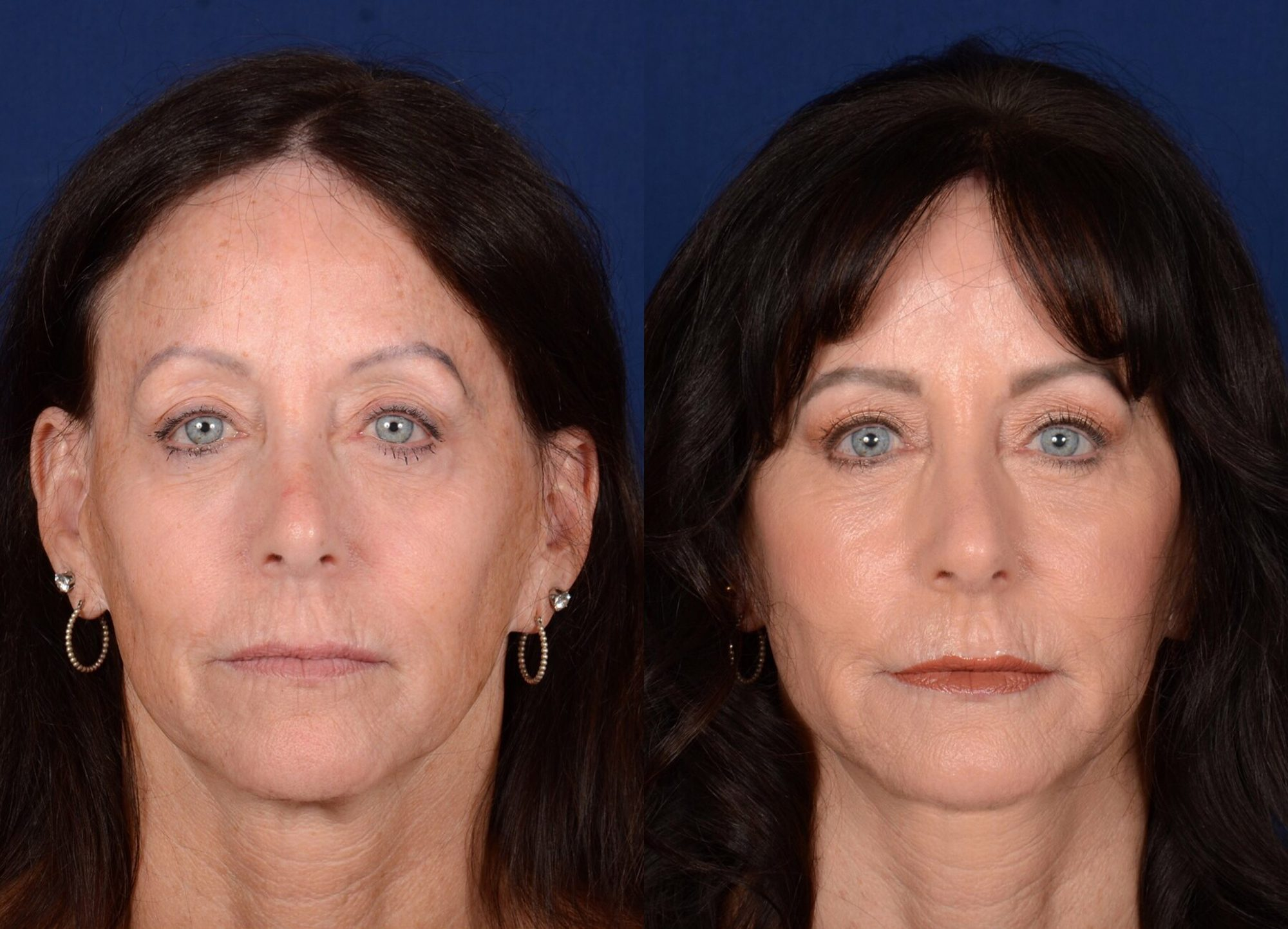 twins-facelifts-4