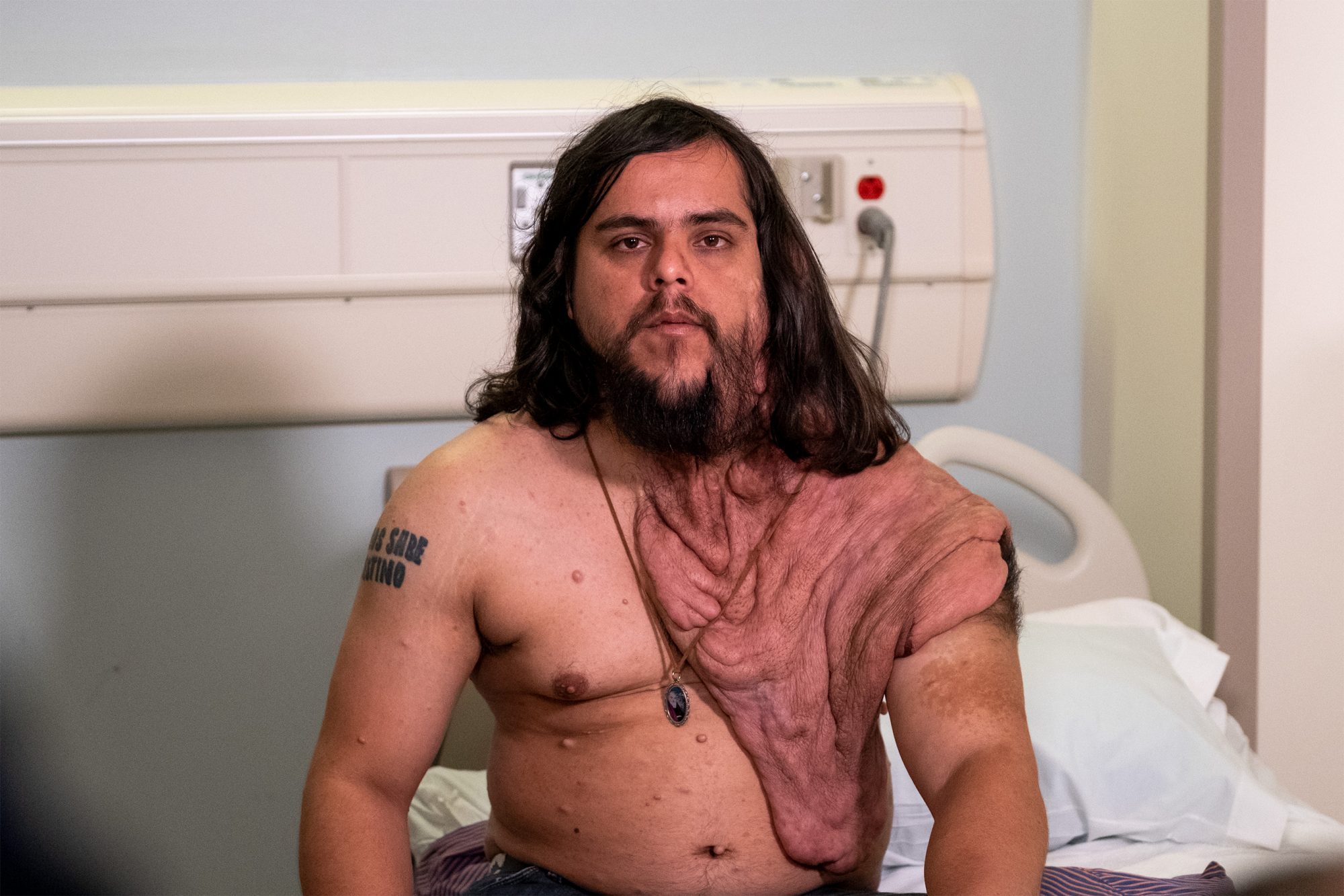 UCI DOCTORS DONATED SURGERY TO HELP PARAGUAY MAN SUFFERING FROM RARE SKIN DISORDER