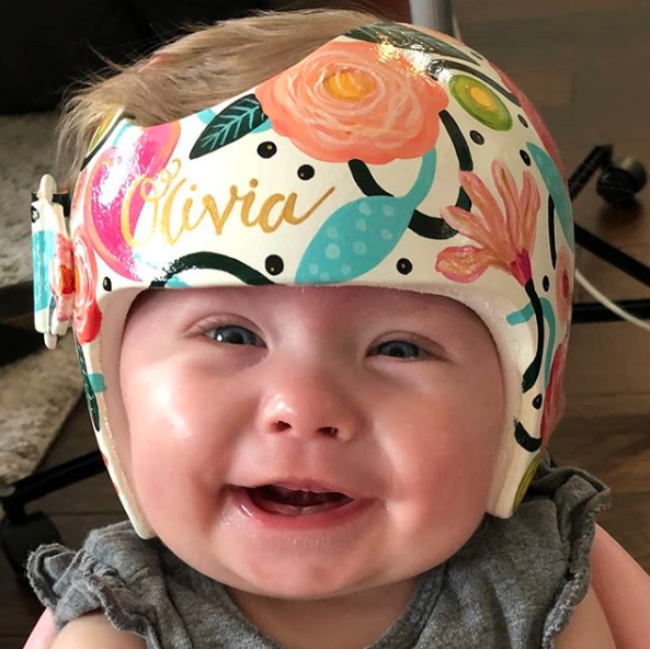 Washington Artist Creates Amazing Works of Art For Corrective Helmets Worn By Babies