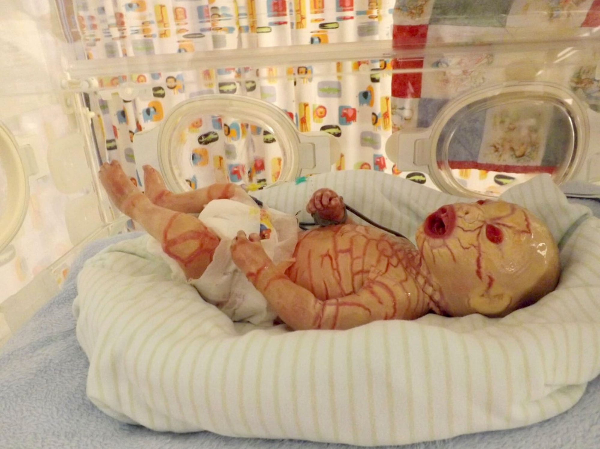 Michal Winter, baby with Harlequin ichthyosis