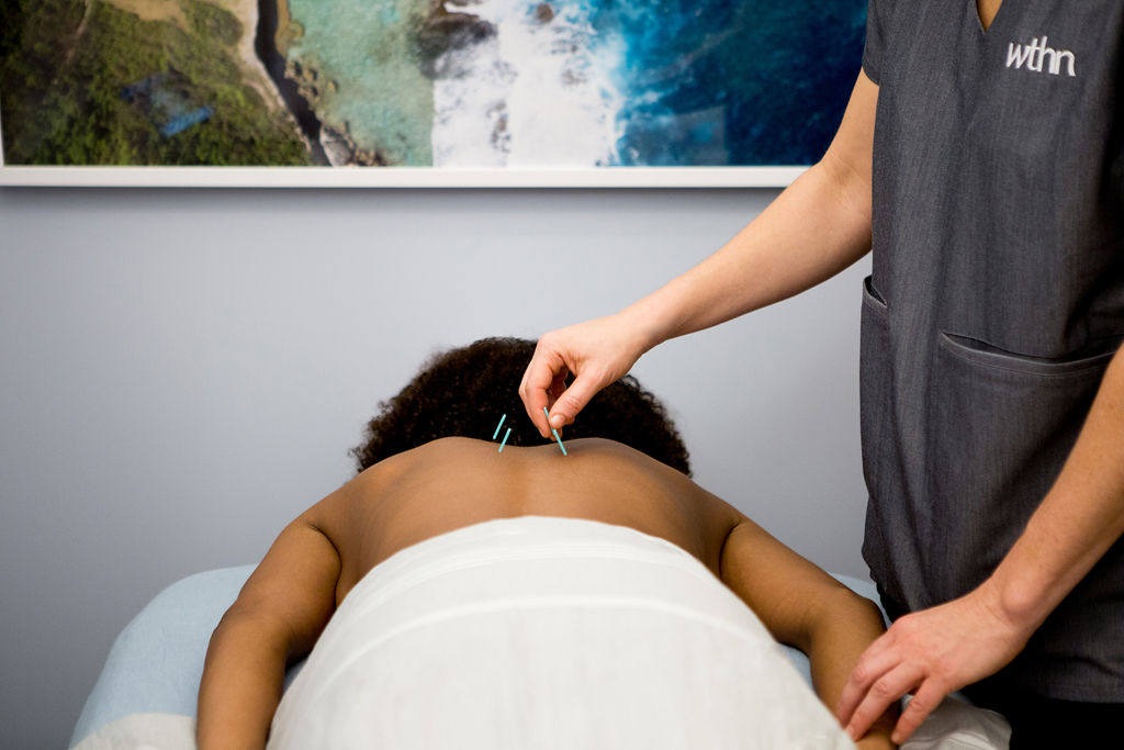WTHN Acupuncture