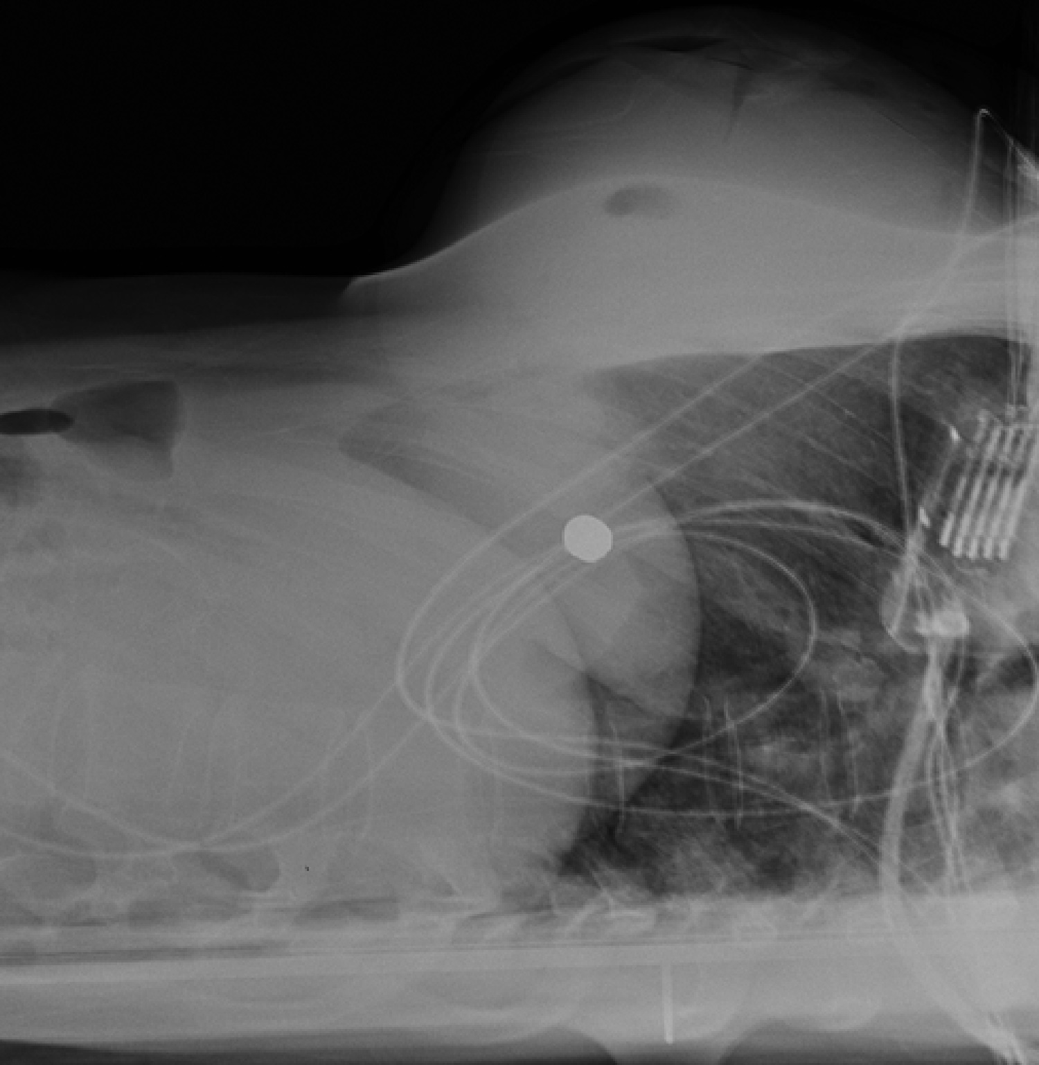 Chest radiographs. Bullet is visible at center left.