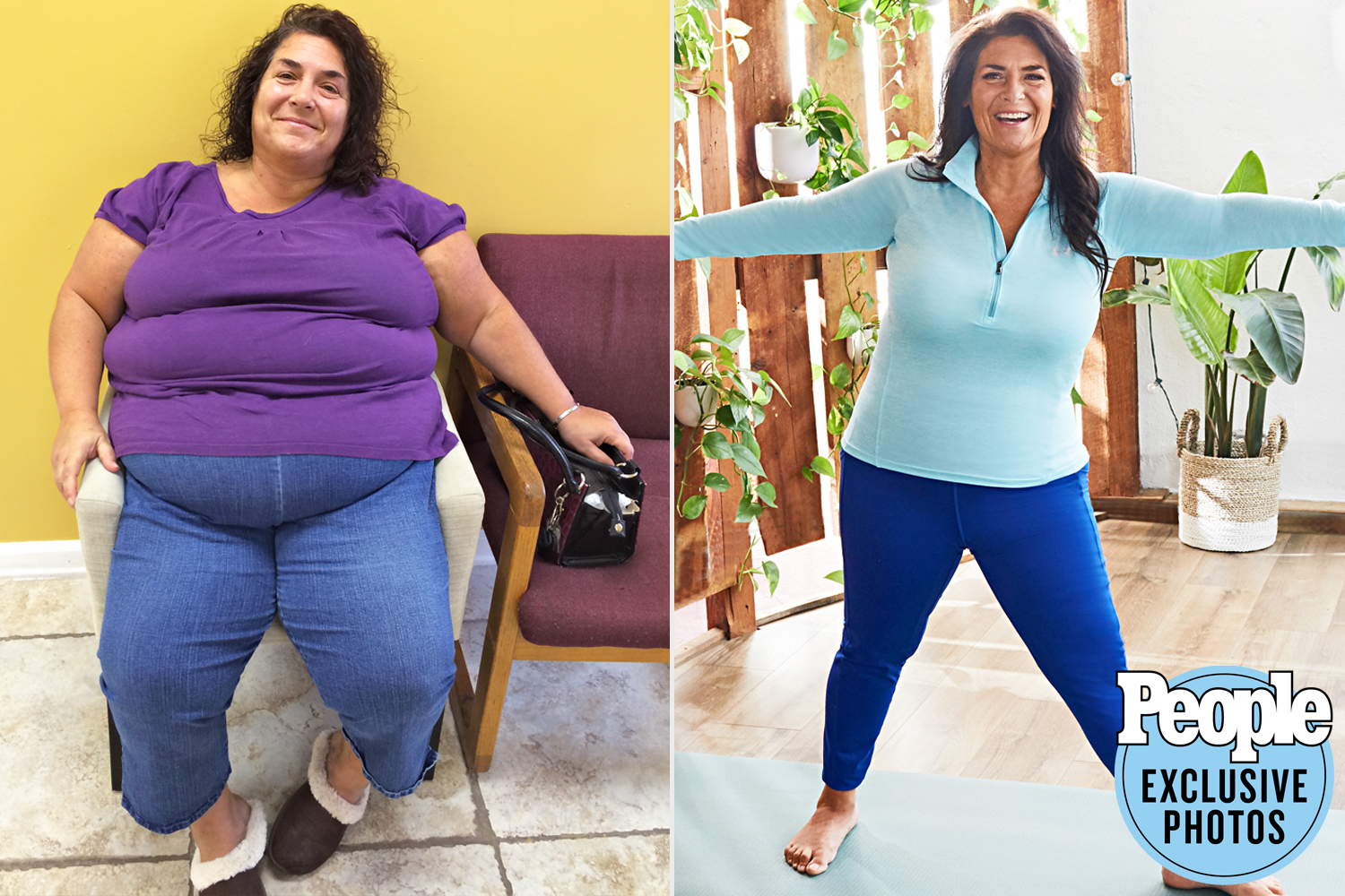 Linda Migliaccio - Before and After