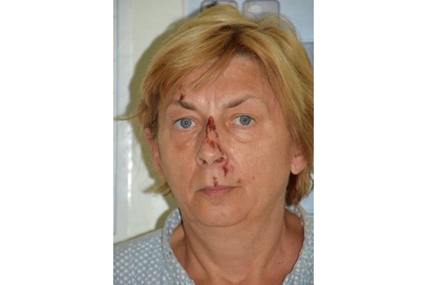 Mysterious English-speaking woman found in Croatia