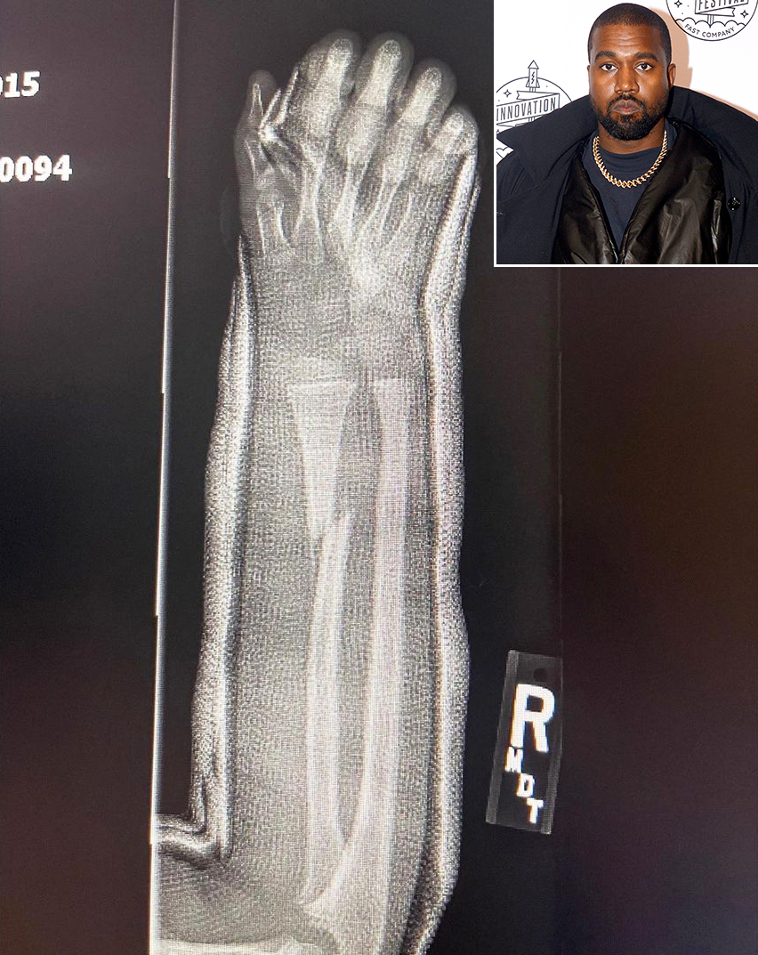 Kanye West Shares 3 Photographs of What Appears to Be Son Saint's Broken Arm