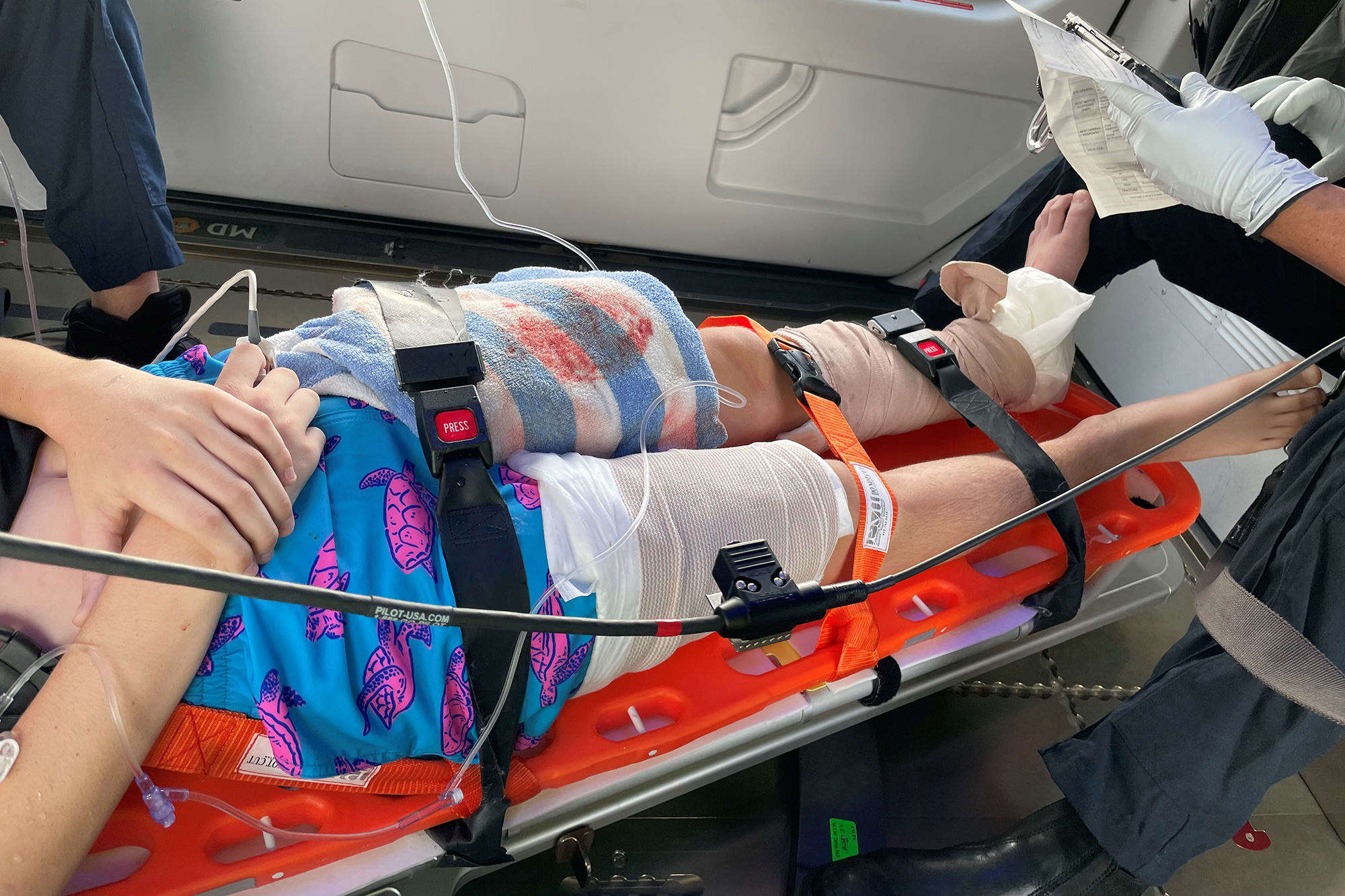 Lucas Cruz, 15, survived a shark attack on Aug. 7 and is now recovering.