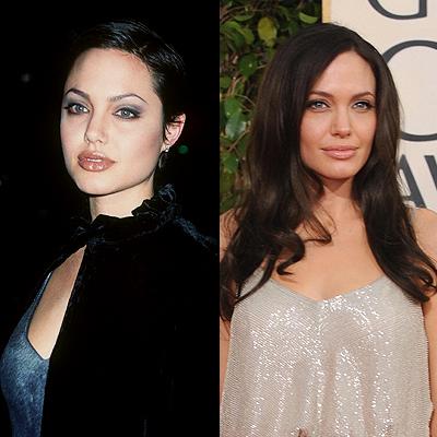 Angelina Jolie, cirugías
