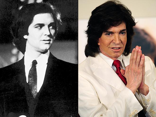 Camilo Sesto, Cómo los cambió la cirugía