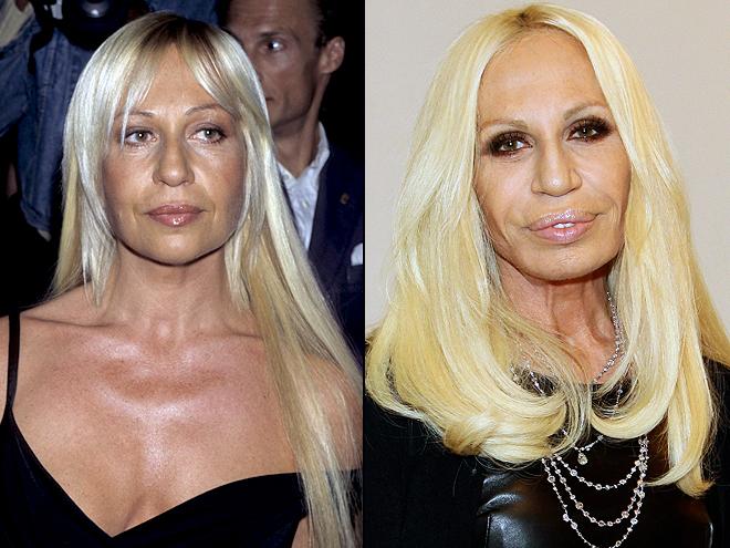 Donatela Versace, Cómo los cambió la cirugía