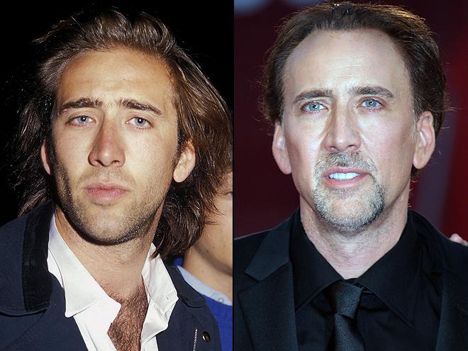 Nicolas Cage, Cómo los cambió la cirugía