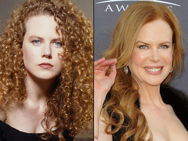 Nicole Kidman, Cómo los cambió la cirugía
