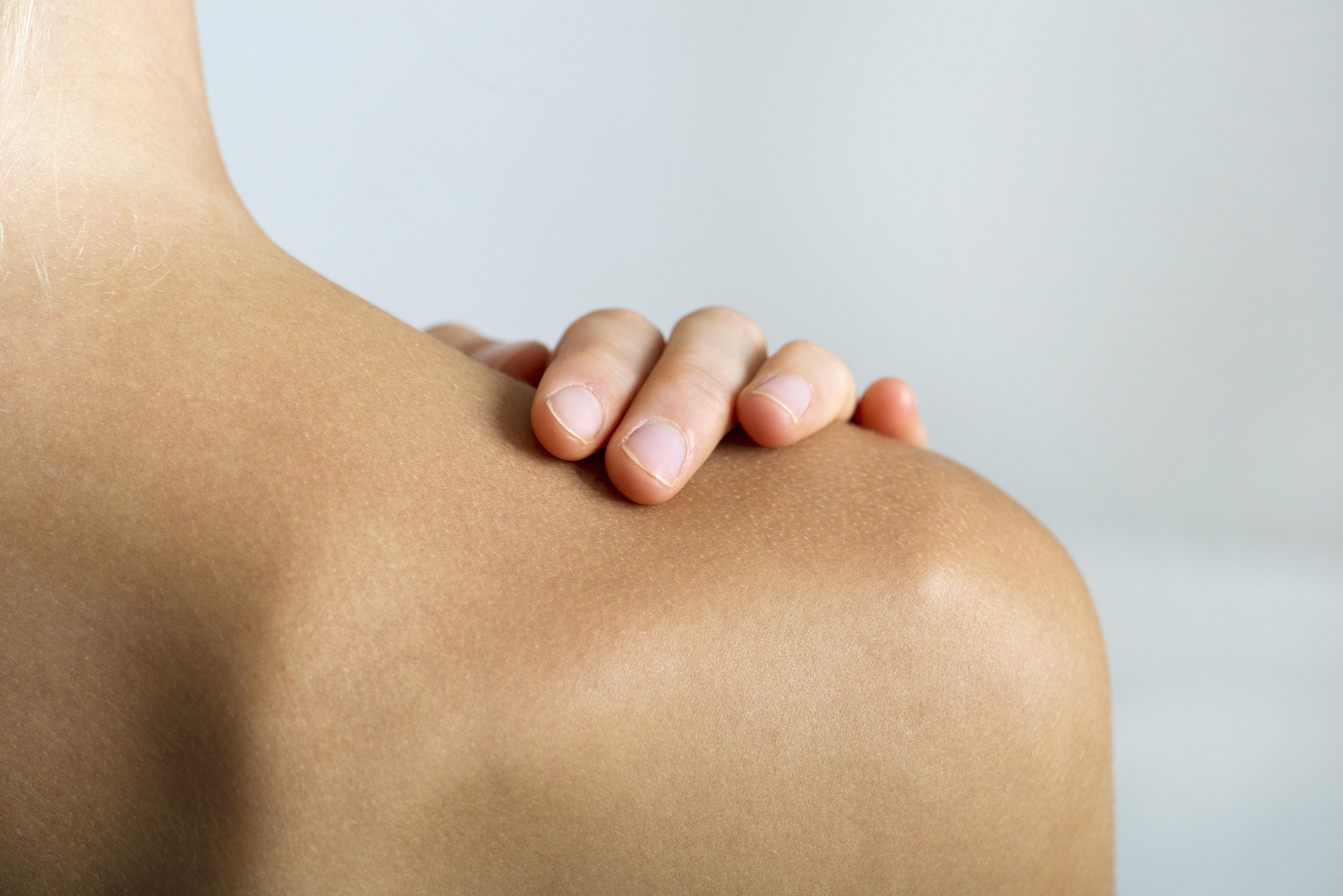 espalda, acne, acne corporal, productos, belleza