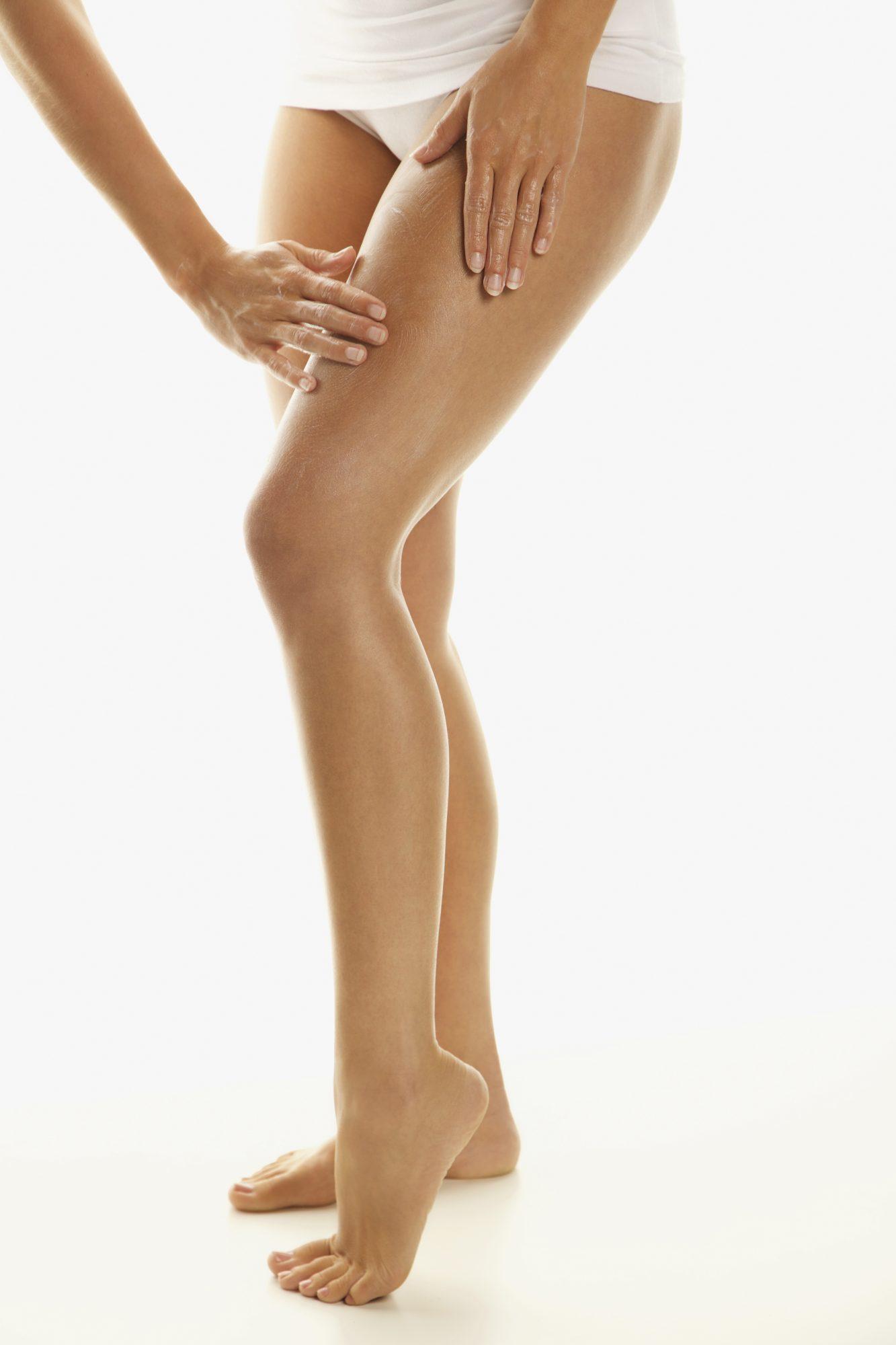 piernas, varices, arañas vasculares