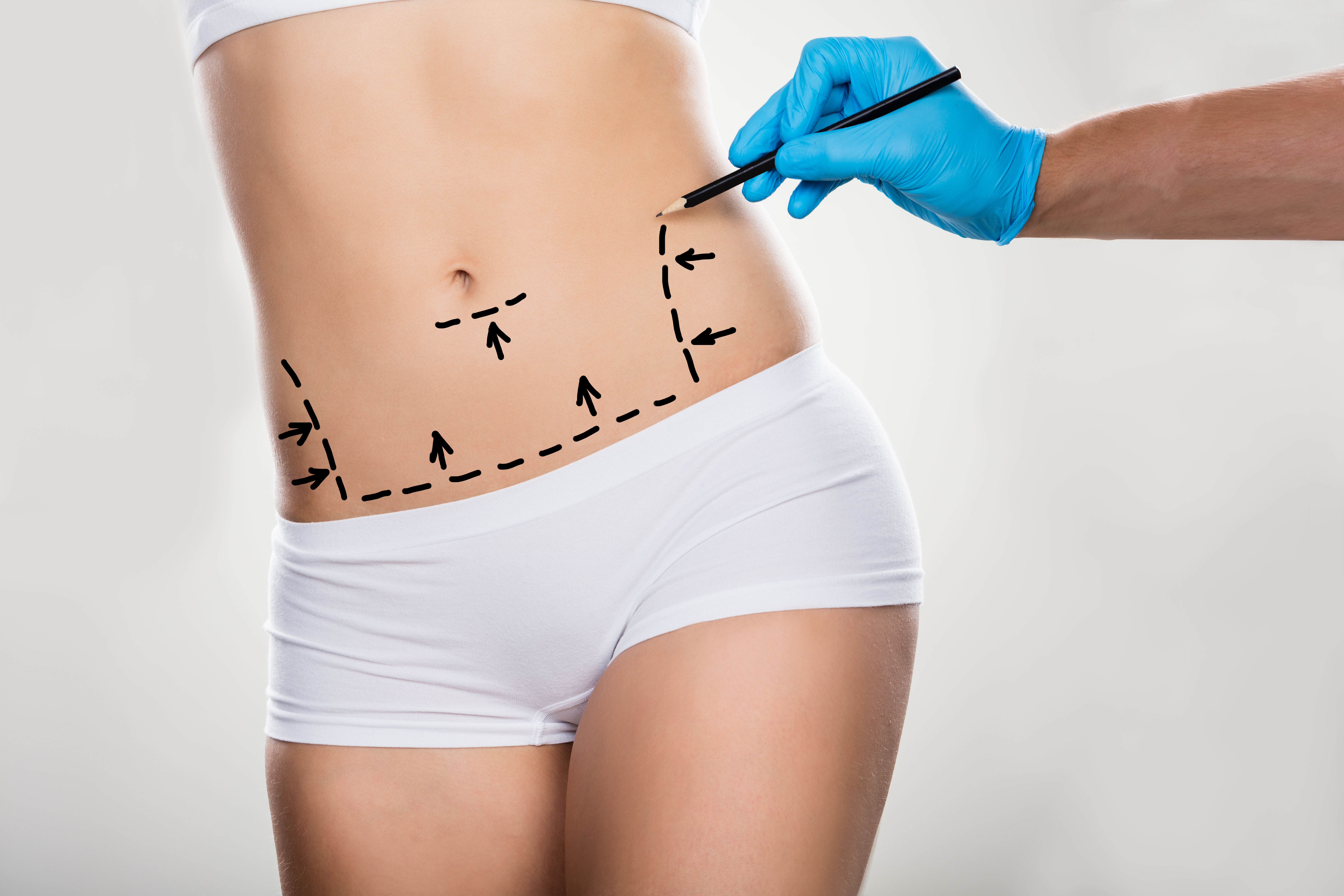 Surgeon Drawing Correction Lines On Woman's Stomach