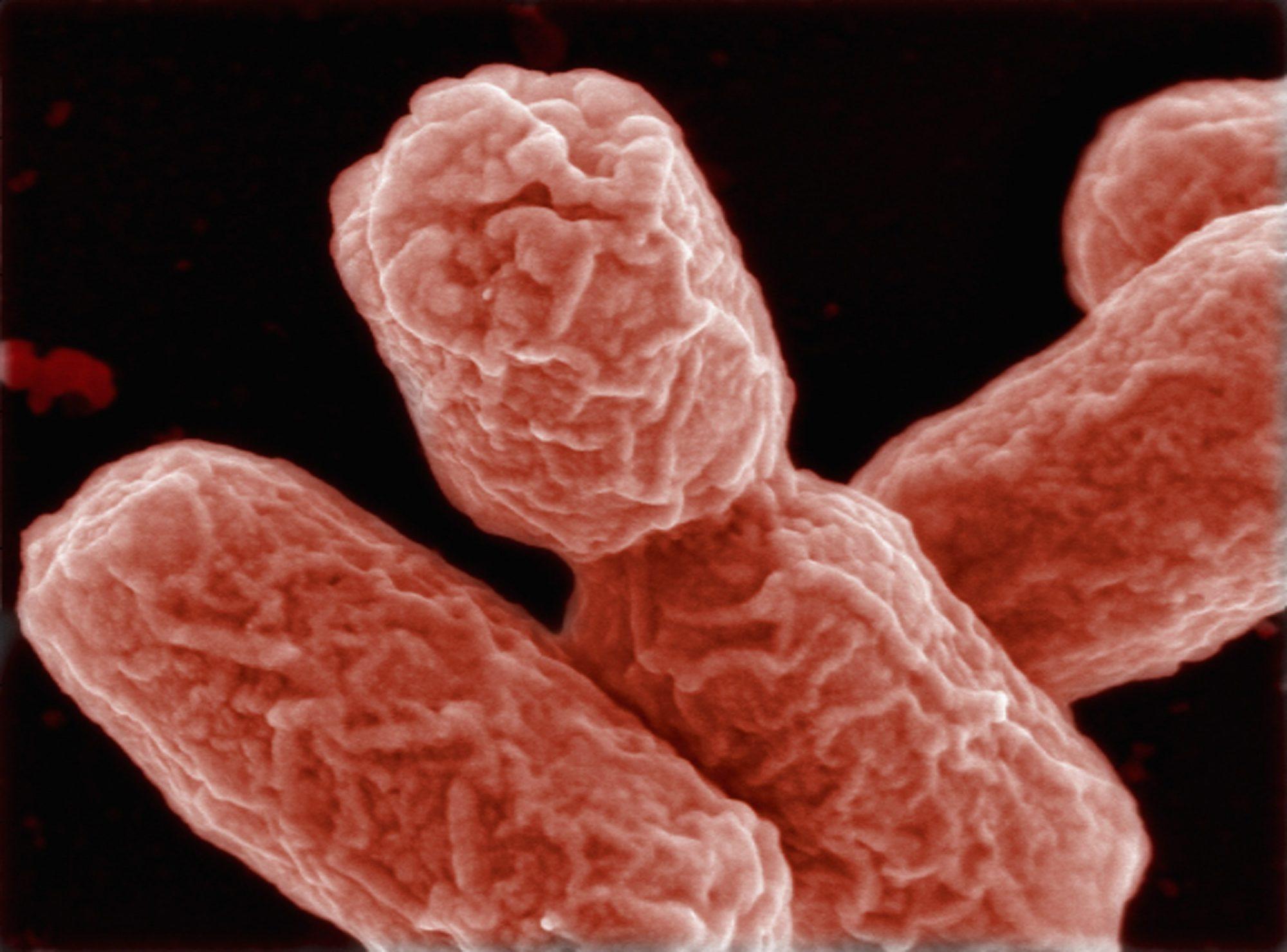 Microbios, gérmenes