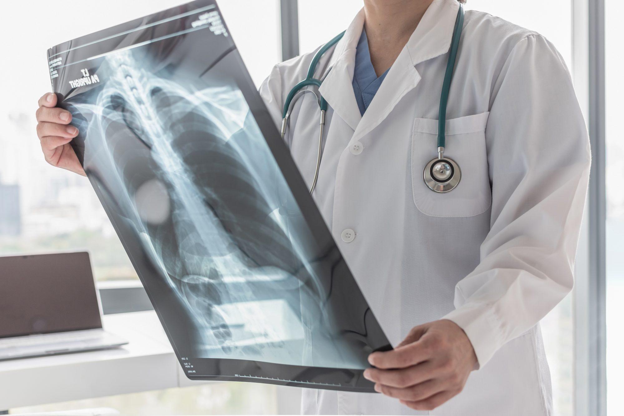 Pulmonary Fibrosis Story