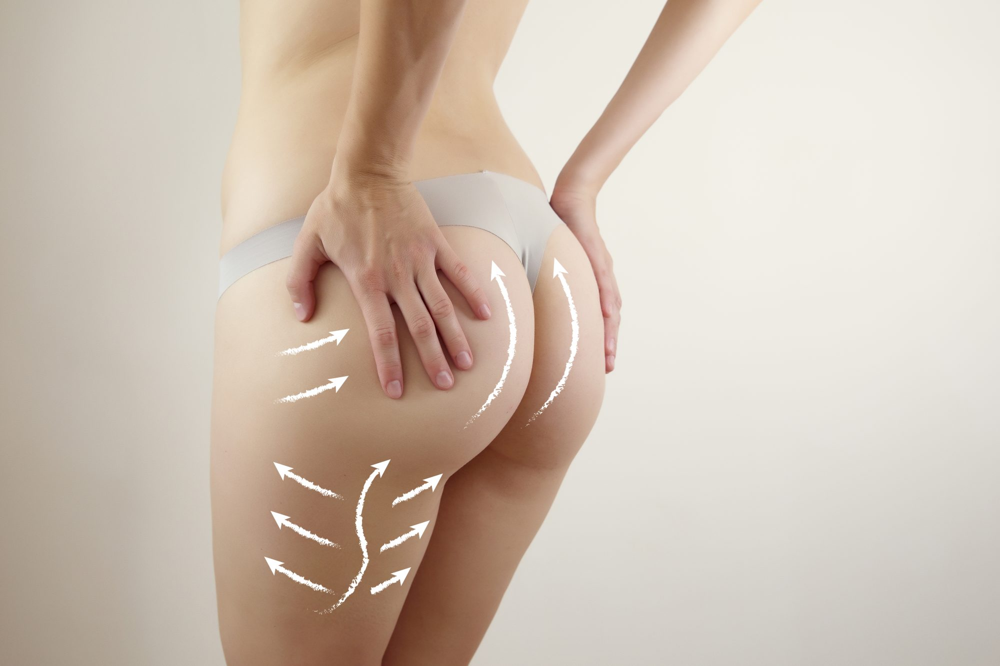 anti- cellulite therapy graphic visualisation on female body