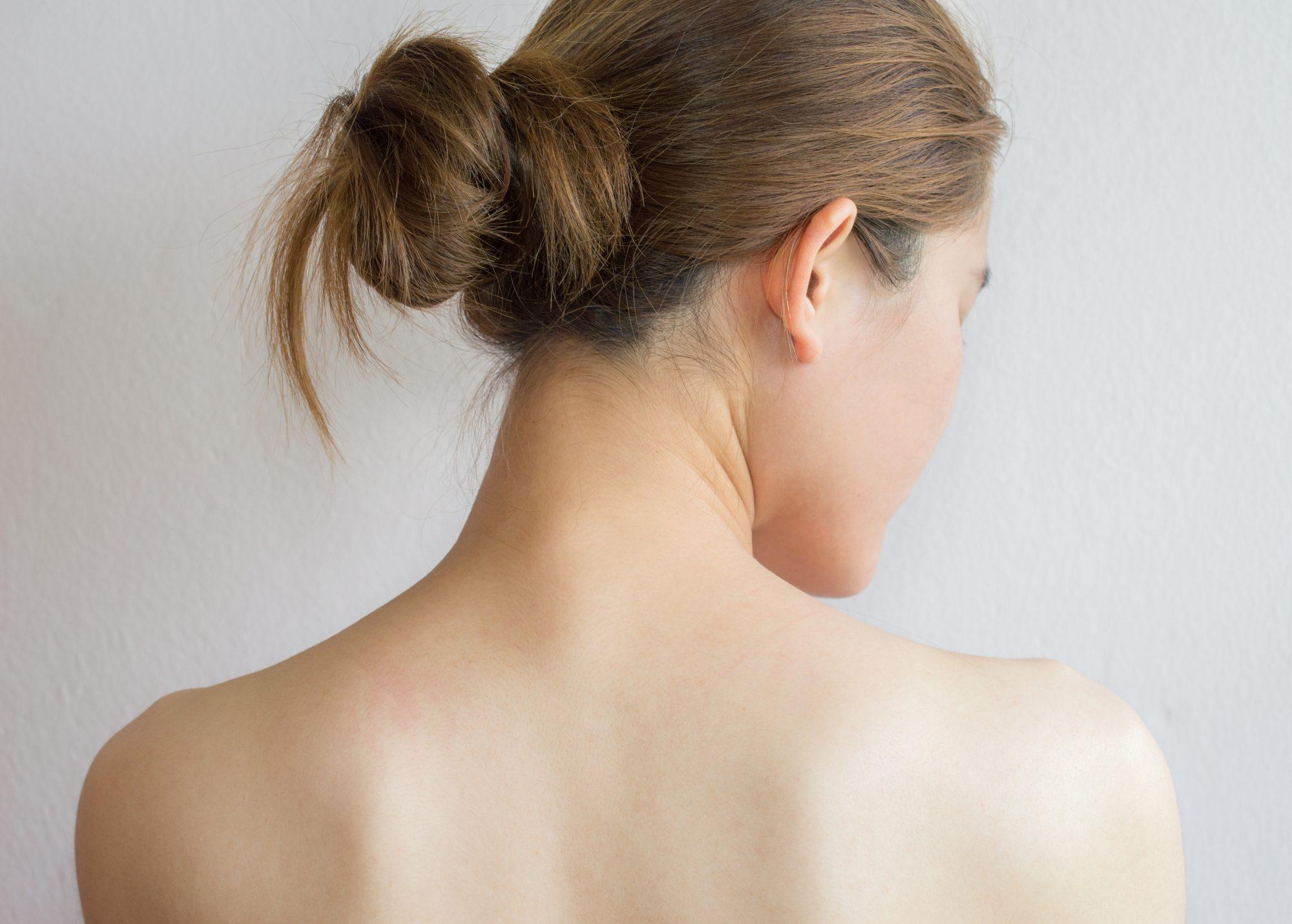 Remedios contar el acné en la espalda