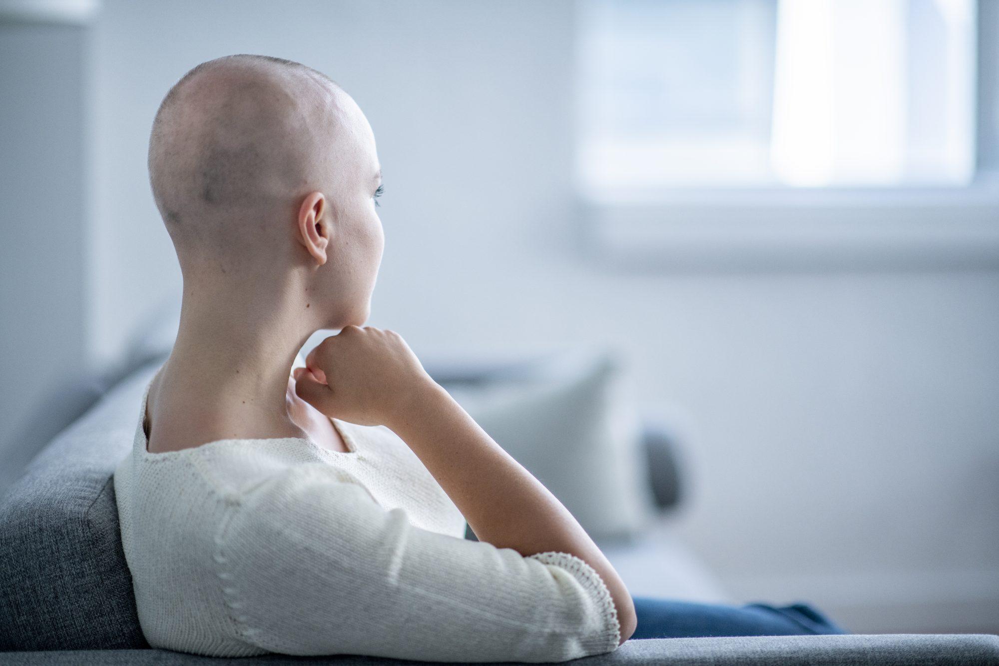 Alopecia Story