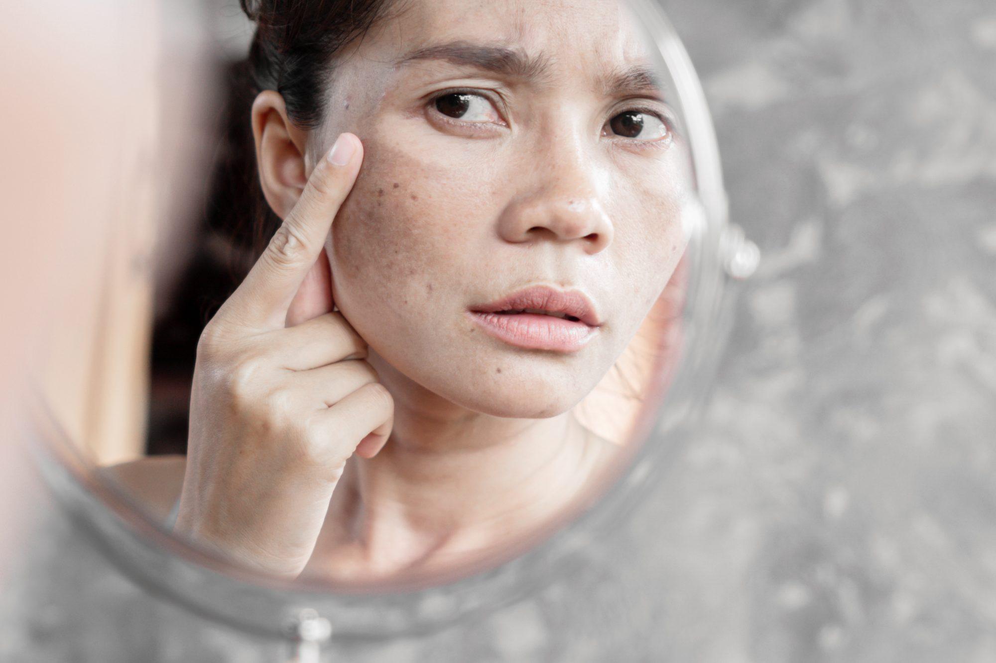 3 de los mejores productos para combatir las manchas en el rostro