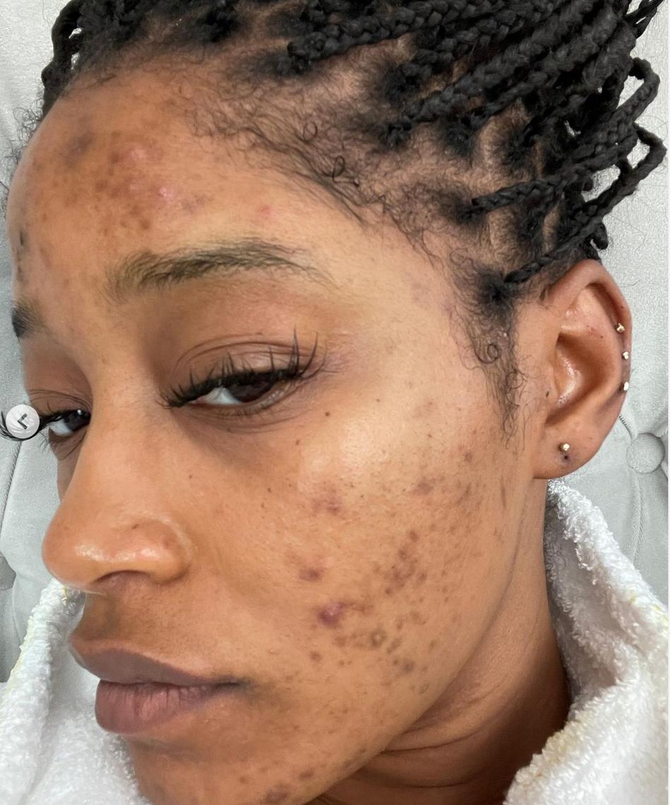 Keke Palmer, keke palmer con acne, acne