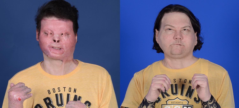 Joe DiMeo transplante de mano y cara