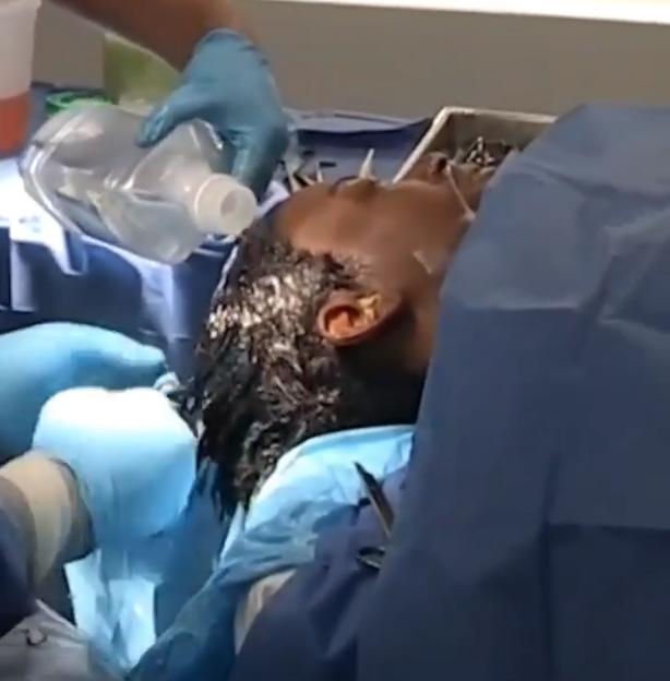 Tessica Brown, cirugia, cabello, pegamento, gorilla glue