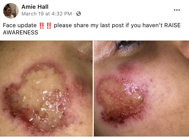 Amie Hall