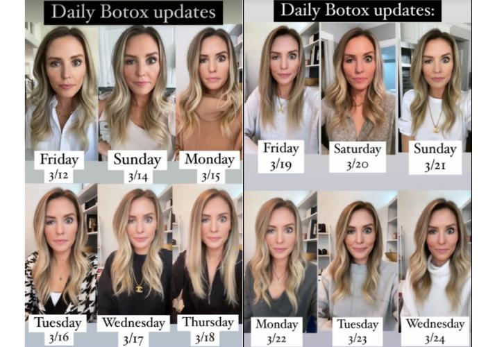 Bloguera Chicago botox ojos fallo