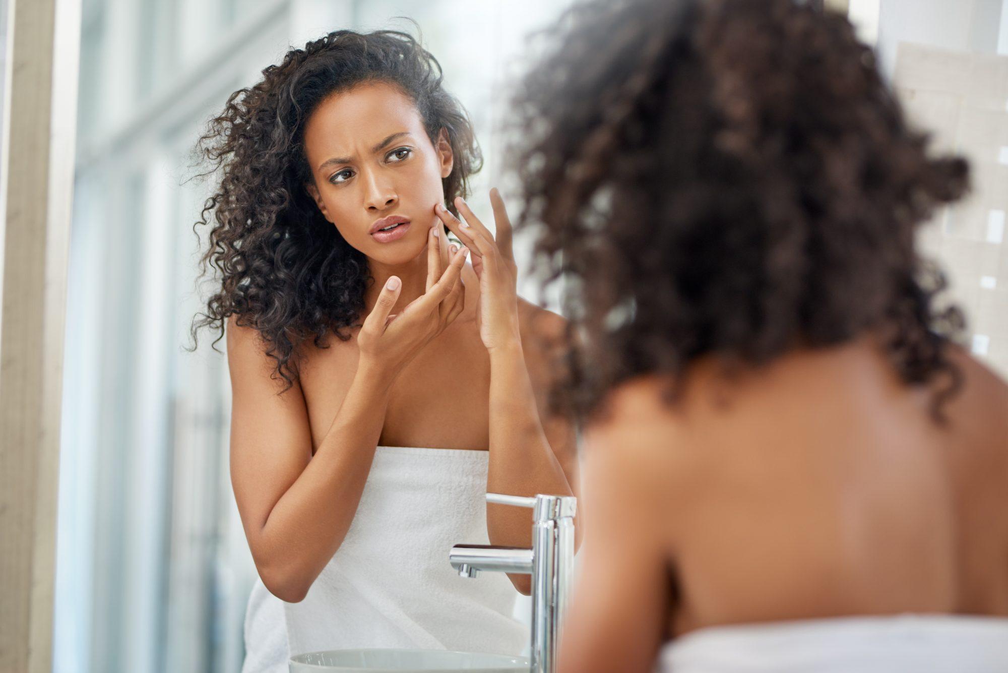 Productos para el acné