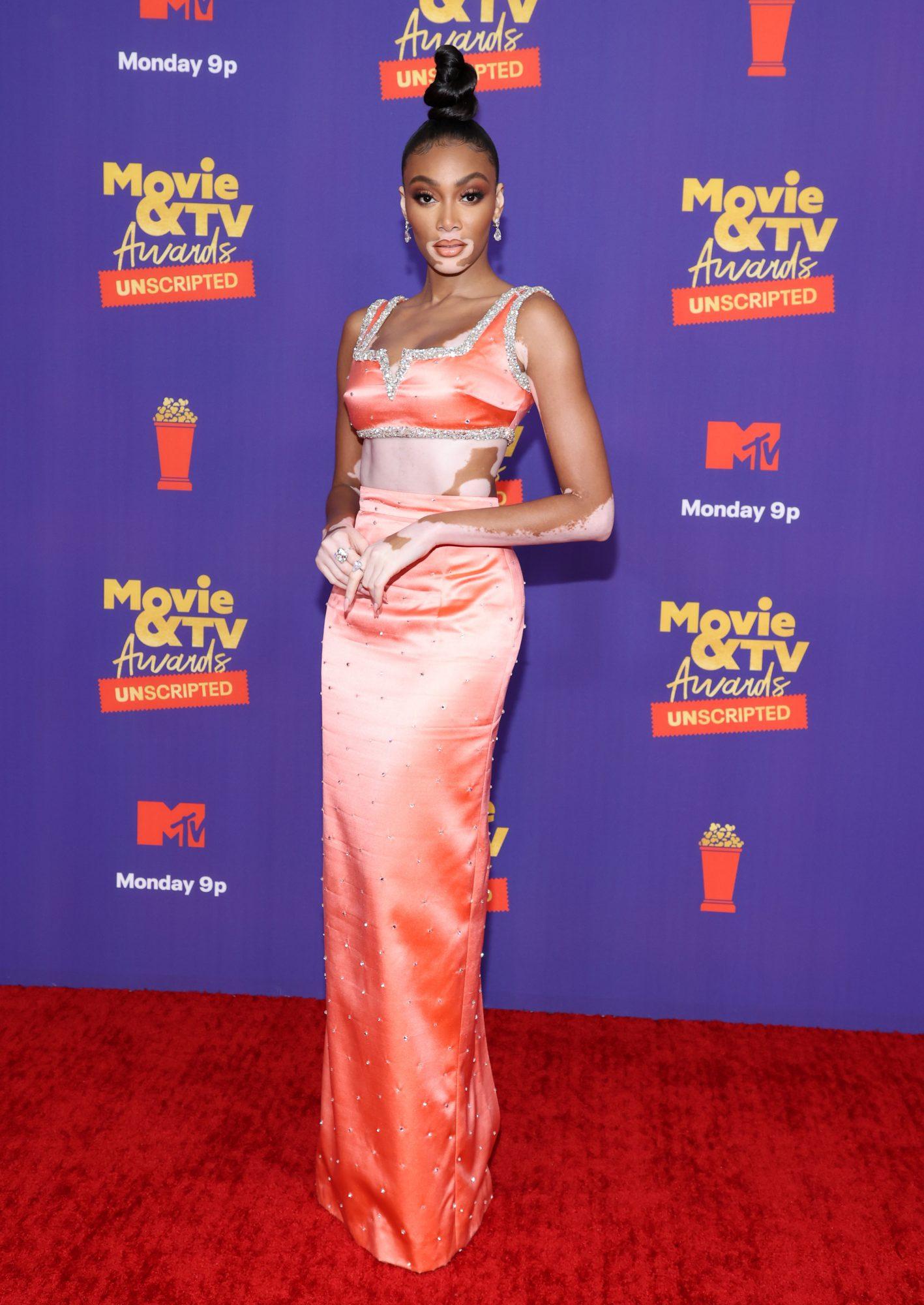 MTV Movie & Television Awards, Winnie Harlow